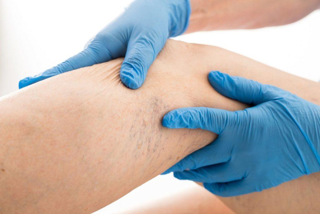 Лазерное лечение варикоза — Эндовенозное лазерное лечение EVLT