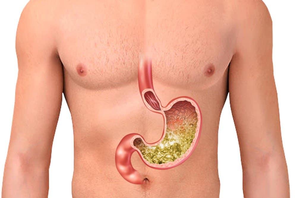 Шунтирование желудка